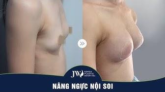 Rửa mắt với bộ ngực siêu đẹp chỉ sau 7 ngày phẫu thuật nâng ngực nội soi 4.0