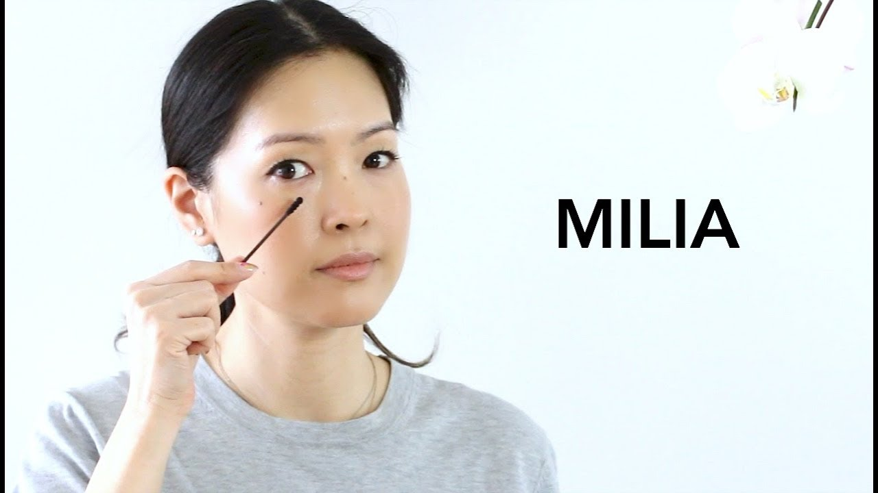 Milia How To Treat Prevent Best Eye Products Youtube