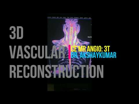 CE MRA: Contrast enhanced - MR Angiography on 1.5 Tesla, post processing the 3D reconstruction