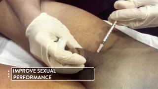 Penis Platelet Rich Plasma (PRP) Procedure  in Premier Clinic