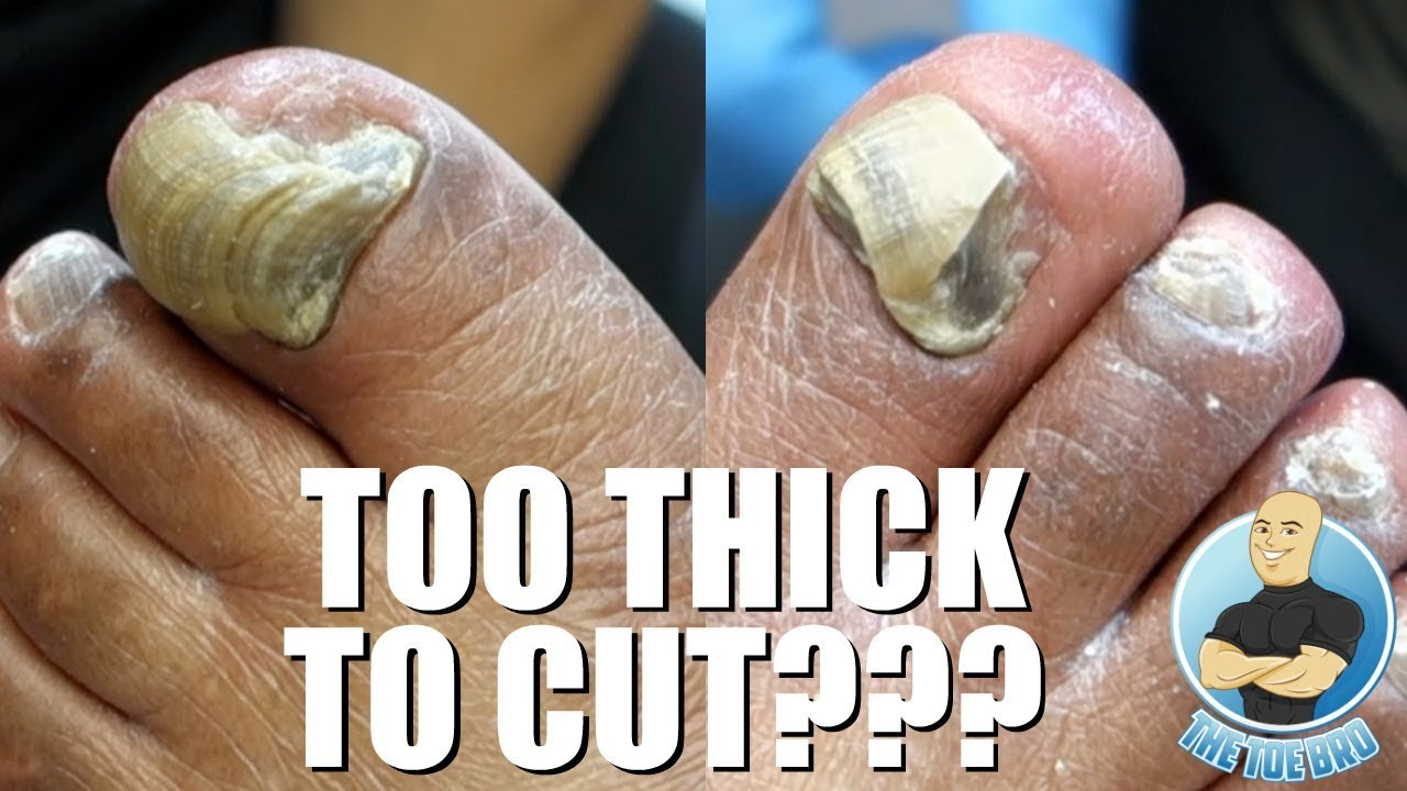 TRIMMING EXTREMELY THICK TOENAILS - FULL TREATMENT - YouTube