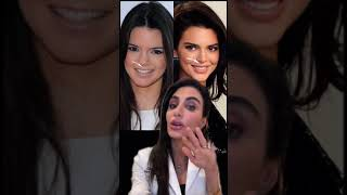 The Truth About Kendall Jenner's Plastic Surgeries Tiktok skinbydrazi