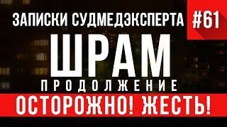 Записки Судмедэксперта 61.2 «Шрам» (Осторожно, ЖЕСТЬ!)