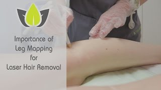 Baixar Leg Mapping Laser Hair Removal