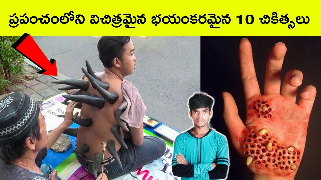 Top 10 Amazing therapies | Therapies Telugu | medicine | Interesting facts | BMC facts | Telugu