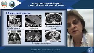 НАУЧНАЯ ШКОЛА Лучевая диагностика врожденных пороков сердца и заболеваний миокарда у детей
