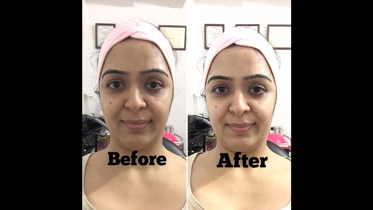 Watch How to get instant fairness – Home remedies for skin lightening overnight video