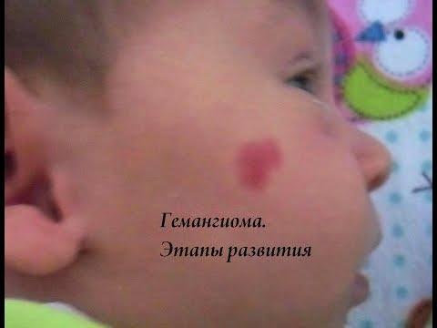 Гемангиома у ребенка. Этапы развития.
