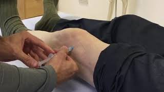 Hyaluronic acid treatment Knee arthritis treatment thumbnail