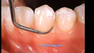 Los Angeles Dentist Provides Insight About Dental Hygiene 9-24 -s