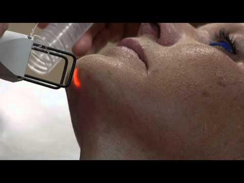 Deka DOT - Dr. Banis Plastic Surgery