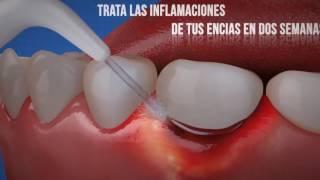 Veja como funciona o Fio Dental a Água [Substituto do fio dental ]