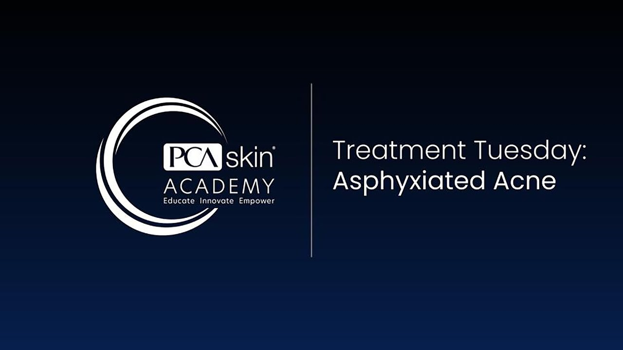 Click to open this video in a pop-up modal: Treatment Tuesday: Asphyxiated Acne Treatment