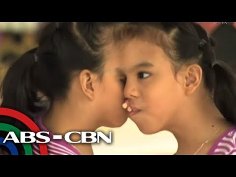 Rated K: Conjoined twins Joy and Joyce need help