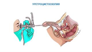 видео Современная диагностика уретрита