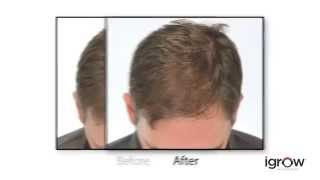 iGrow® Hair Rejuvenation System Thumbnail