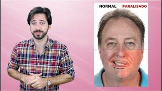 Vascular acidente sanguíneo de coágulo sintomas cerebral nos