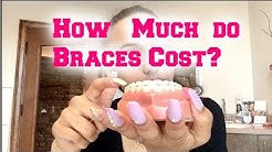 How Much Do Braces Cost?? Contract Explanation