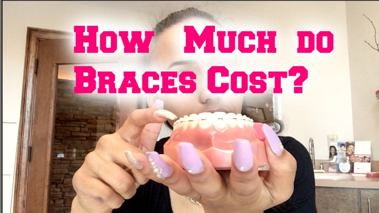 How much do braces cost contract explanation youtube solutioingenieria Gallery
