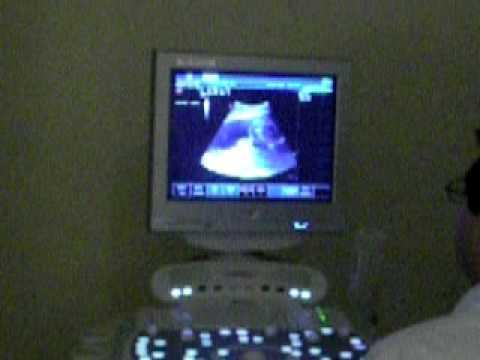 ECO 23S 2D de Priscilla 26/09/2009
