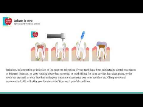 Root Canal Treatment  UAE  | Dental Hospital In Abu Dhabi