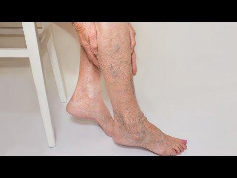 Варикоз на ногах: фото, начальная стадия, признаки, пятна на ногах при варикозе