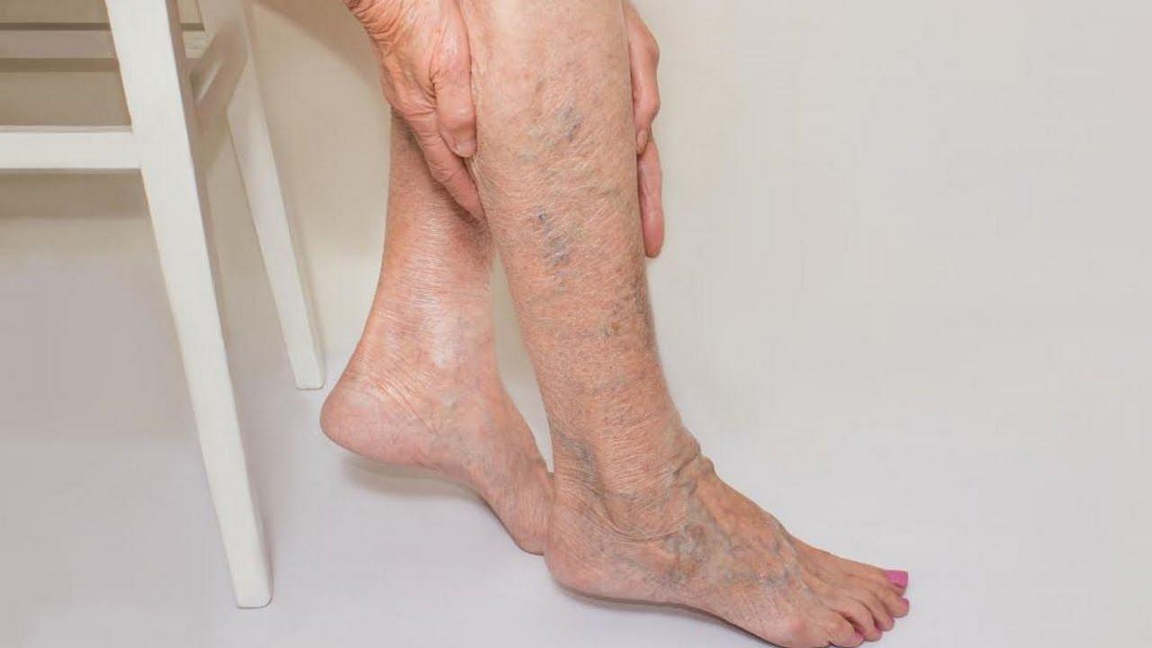 Варикоз на ногах: фото, начальная стадия, признаки, пятна ...