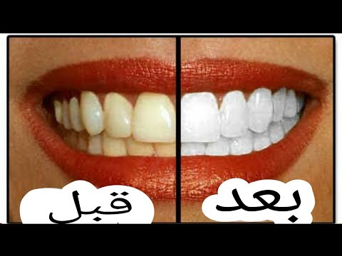 without-a-cosmetic-process-salt-and-lemon-a-magic-recipe-for-teeth-whitening-epishod---81