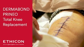 Total Knee Replacement Surgery - Dermabond Prineo   ETHICON