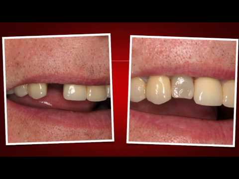 Implant Case #7 - Dr. Tarun Agarwal, Part 9: Provisional CEREC placement