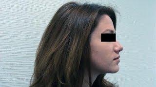 Хотите Иметь Красивый Нос? Как Изменить Исправить Форму Носа? Говорит ЭКСПЕРТ /Says Expert/(http://www.plastclinic.ru Красивый нос дается нам от природы. Но форму носа можно изменить. Исправить горбинку, асиммет..., 2013-09-27T10:36:05.000Z)