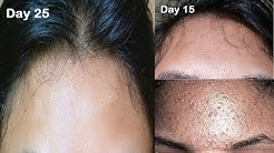 hqdefault - Advice For Pimples On Forehead