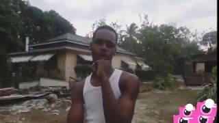 Broke Jaw Bone [ Funny business Entertainment ]