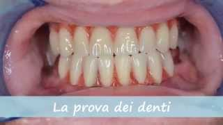 All on 4 - Protocolo - Impianti Dentali - Turismo Dentale Croazia