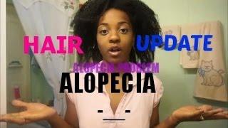 Alopecia Hair Update + Emu Oil Hair Challenge