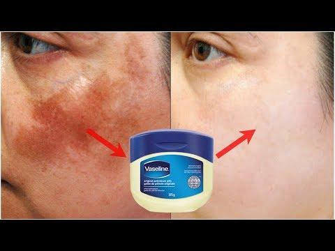 10 दिन में चेहरे की झाइयां और धब्बे दूर करने का अचूक उपाय - Skin Pigmentation & Dark Spots Treatment