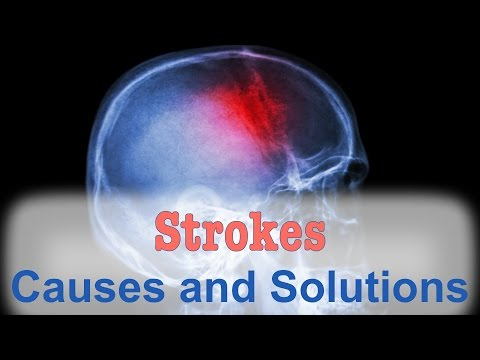 The Natural Solution for Strokes