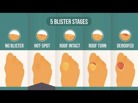 Pre Blister Hot Spots: Where You Are In The 5-Stage Blister Process & Where You're Headed [Theory]