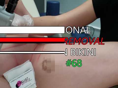 Professional Laser Hair Removal * Brazilian Bikini * Video #68