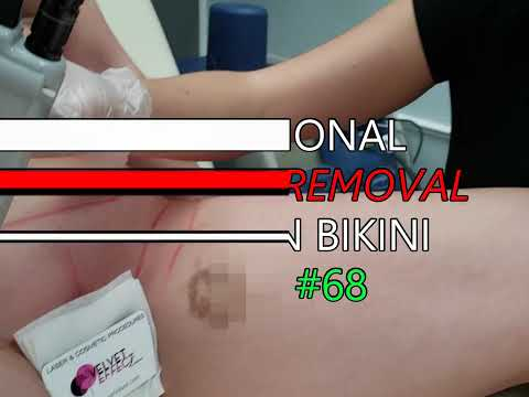 Professional Laser Hair Removal * Brazilian Bikini * Video #68