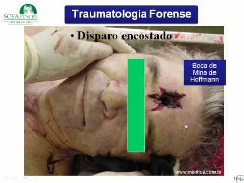 MEDICINA LEGAL TRAUMATOLOGIA PROF NELSON PARTE IV