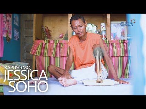 Kapuso Mo, Jessica Soho: Ano ang nangyari sa kaliwang binti ni Mang Singlito?