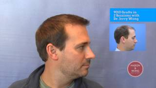 Hair Transplant Surgery Results - Dr. Wong, 9010 Grafts