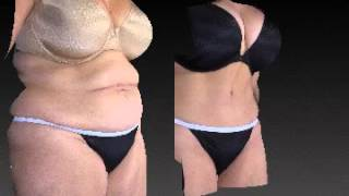 Tummy Tuck 3D Before and After - 1