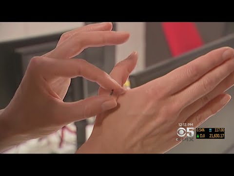 Wisconsin Company To Be First To Implant Employees With Microchips