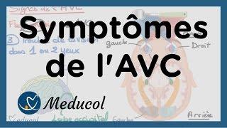 Quels sont les signes d'un AVC : AVC symptômes et AVC séquelles