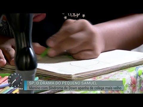 Menino com síndrome de Down tentar superar agressão sofrida na escola | Primeiro Impacto (22/02/18)