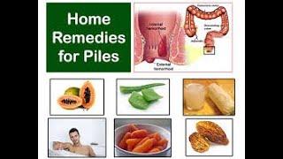 পাইলস থেকে মুক্তির উপায়   ভুল করেও এই খাবারগুলি খাবেন না   Piles Treatment at Home Bangla Diet Plan