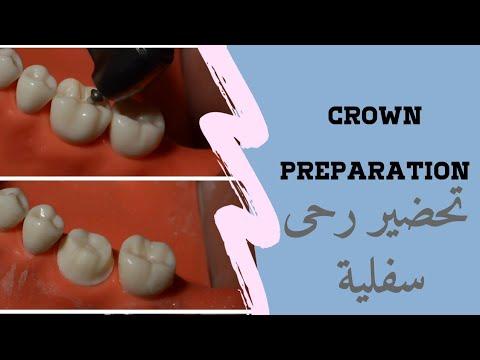 Download تحضير رحى اولى سفلية PFM Crown  Prep and animation for Dental Students