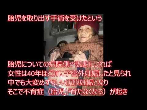 【閲覧注意】衝撃!82歳の女性のおなかから40歳の胎児が発見される、お腹の中にずっと人間が入っていた!46年間妊娠、その子は.